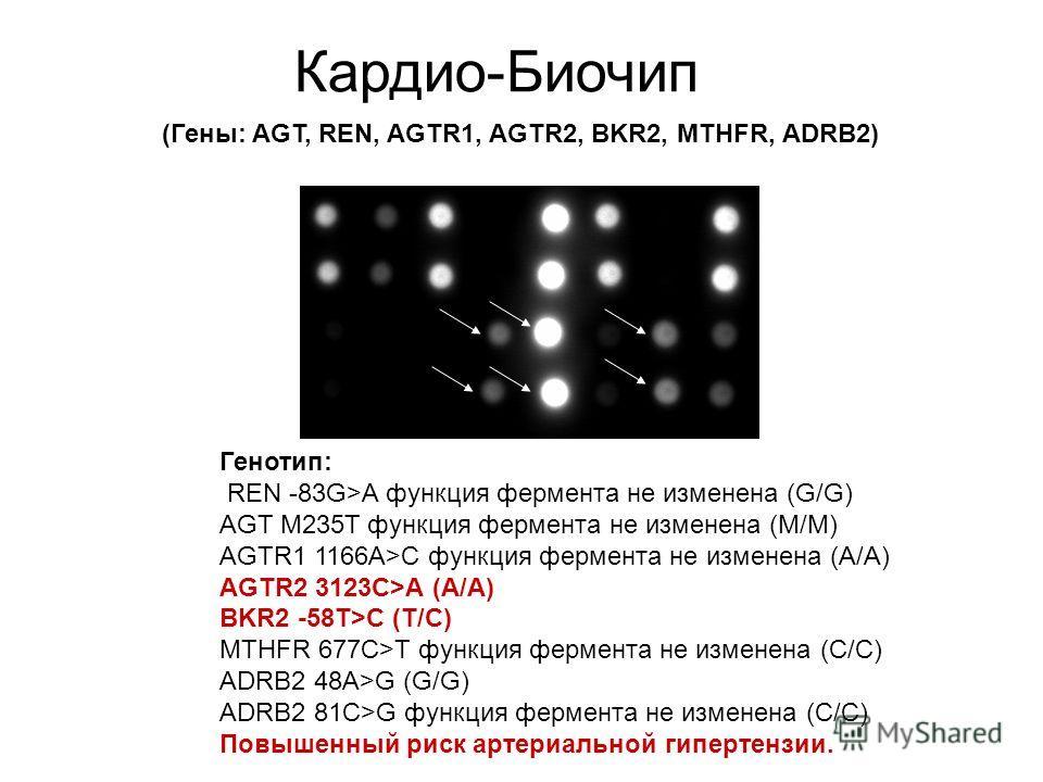 Кардио-Биочип (Гены: AGT, REN, AGTR1, AGTR2, BKR2, MTHFR, ADRB2) Генотип: REN -83G>A функция фермента не изменена (G/G) AGT M235T функция фермента не изменена (M/M) AGTR1 1166A>C функция фермента не изменена (A/A) AGTR2 3123C>A (A/A) BKR2 -58T>C (T/C