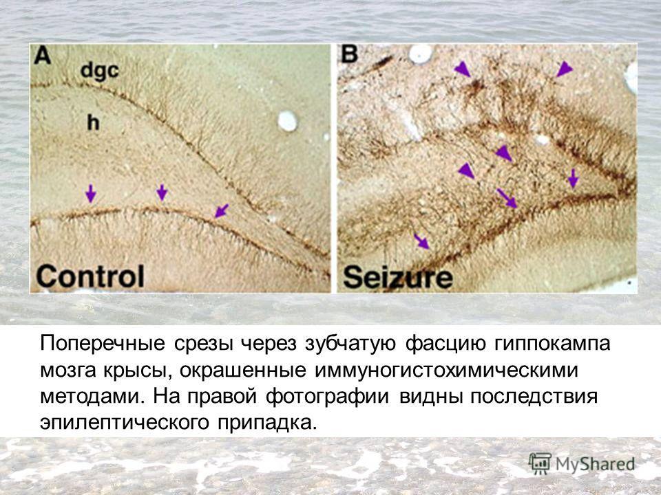 Поперечные срезы через зубчатую фасцию гиппокампа мозга крысы, окрашенные иммуногистохимическими методами. На правой фотографии видны последствия эпилептического припадка.