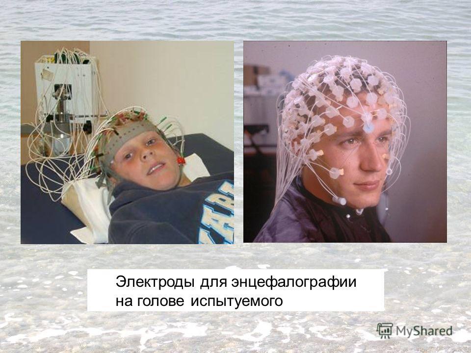 Электроды для энцефалографии на голове испытуемого