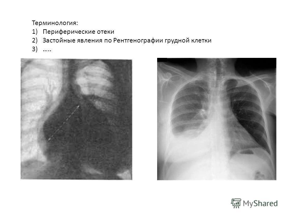 Терминология: 1)Периферические отеки 2)Застойные явления по Рентгенографии грудной клетки 3)…..