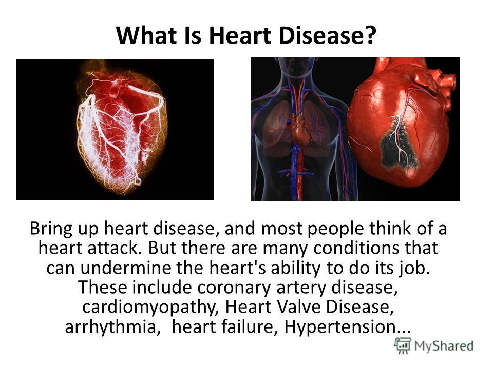 What Is Heart Disease? Bring up heart disease, and most people think of a heart attack. But there are many conditions that can undermine the heart's ability to do its job. These include coronary artery disease, cardiomyopathy, Heart Valve Disease, ar
