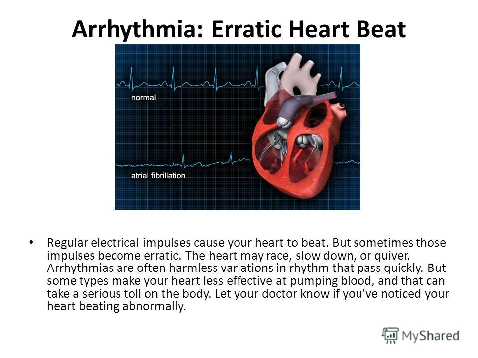 Arrhythmia: Erratic Heart Beat Regular electrical impulses cause your heart to beat. But sometimes those impulses become erratic. The heart may race, slow down, or quiver. Arrhythmias are often harmless variations in rhythm that pass quickly. But som