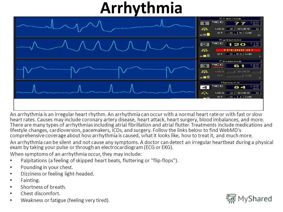 Arrhythmia An arrhythmia is an irregular heart rhythm. An arrhythmia can occur with a normal heart rate or with fast or slow heart rates. Causes may include coronary artery disease, heart attack, heart surgery, blood imbalances, and more. There are m