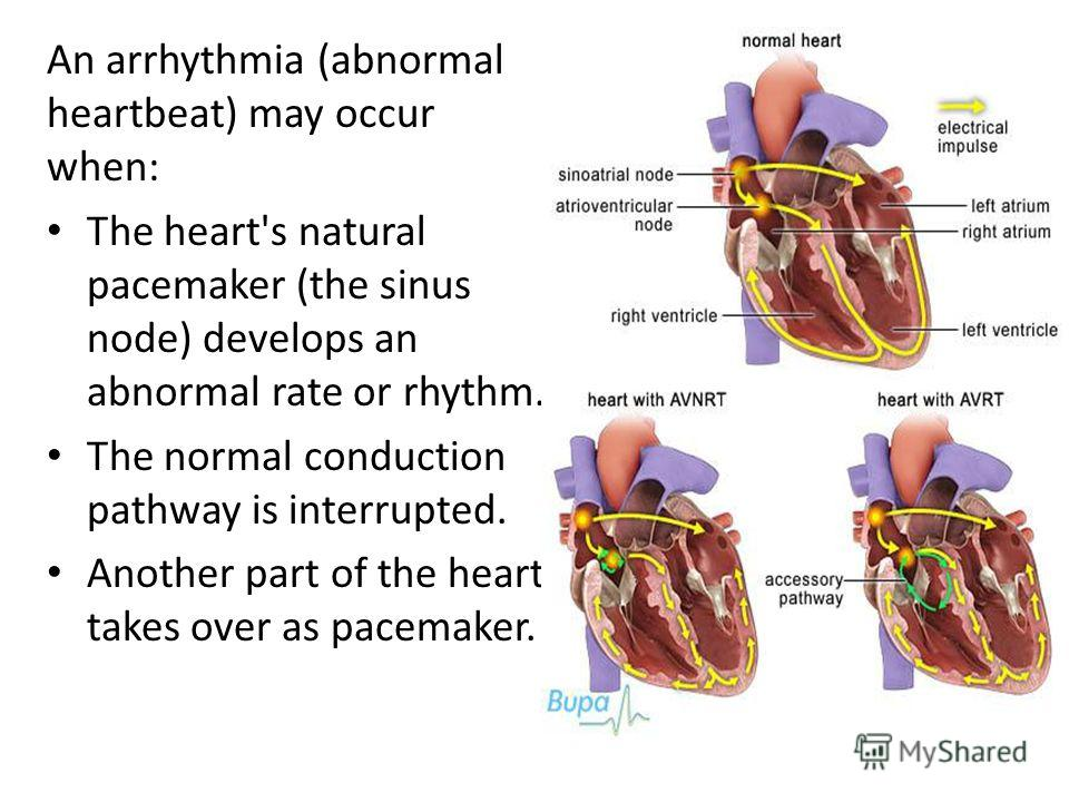 An arrhythmia (abnormal heartbeat) may occur when: The heart's natural pacemaker (the sinus node) develops an abnormal rate or rhythm. The normal conduction pathway is interrupted. Another part of the heart takes over as pacemaker.