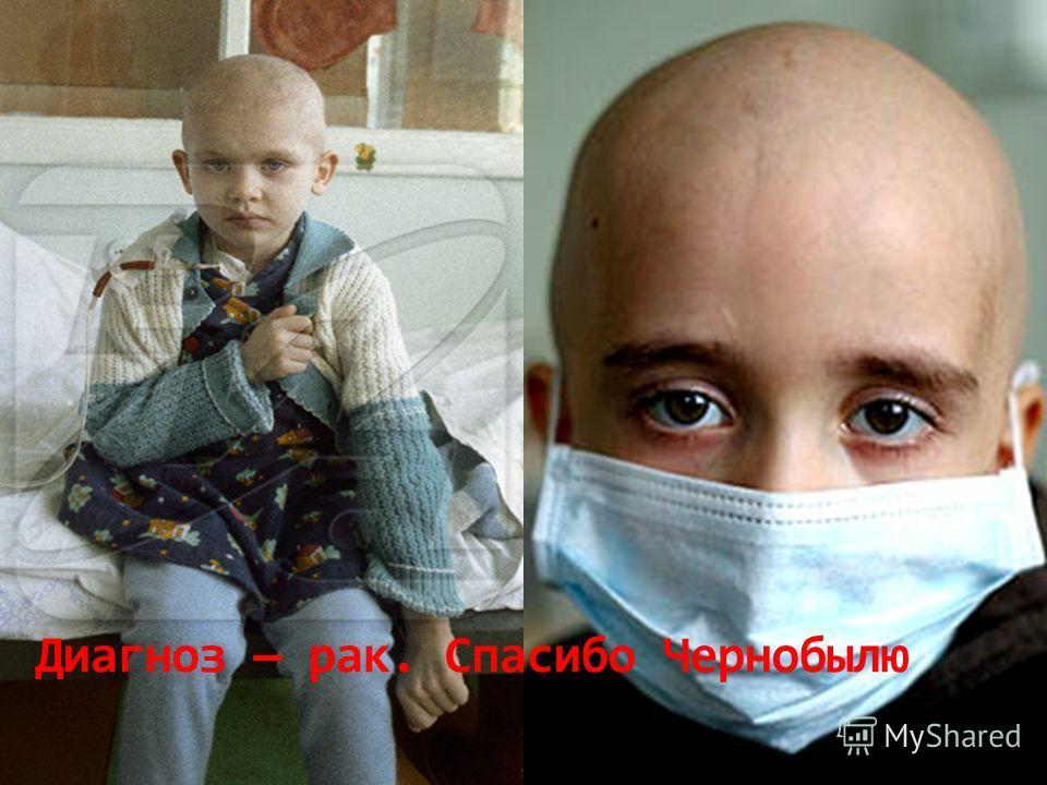 Диагноз рак. Спасибо Чернобылю