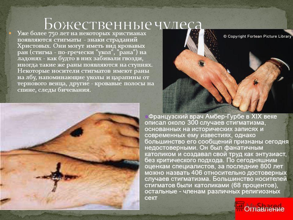 Уже более 750 лет на некоторых христианах появляются стигматы - знаки страданий Христовых. Они могут иметь вид кровавых ран (стигма - по-гречески