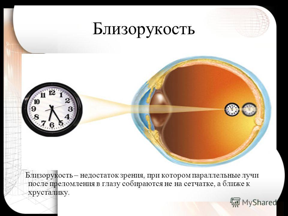 Нормальный глаз Нормальный глаз собирает параллельные лучи в точке, лежащей на сетчатке глаза.