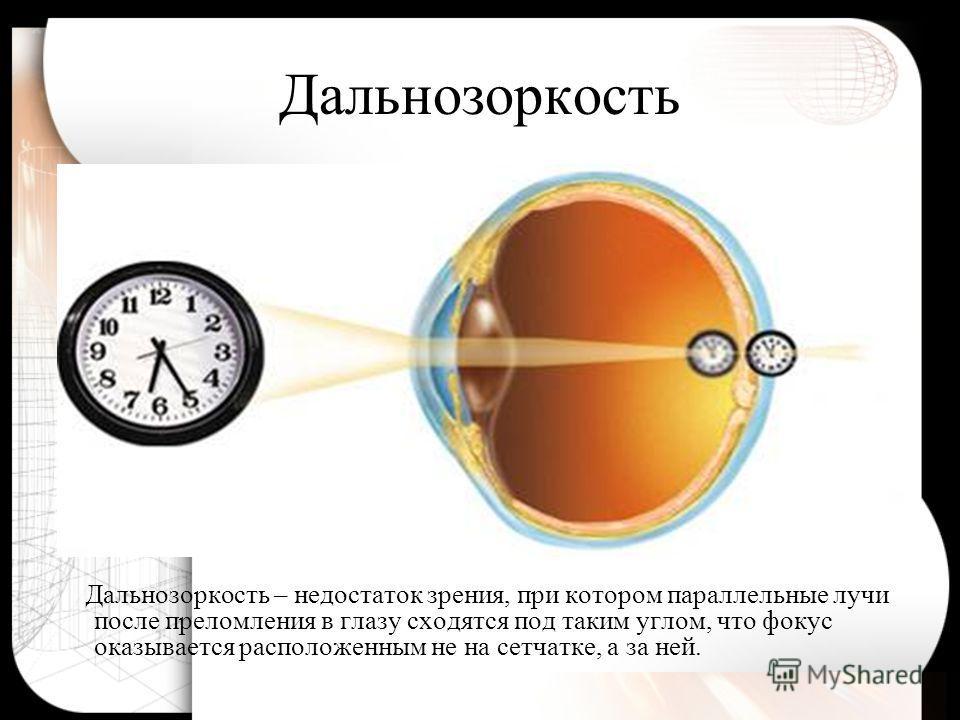 Причины близорукости Избыточная оптическая сила глаза. Удлинение глаза вдоль его оптической оси.