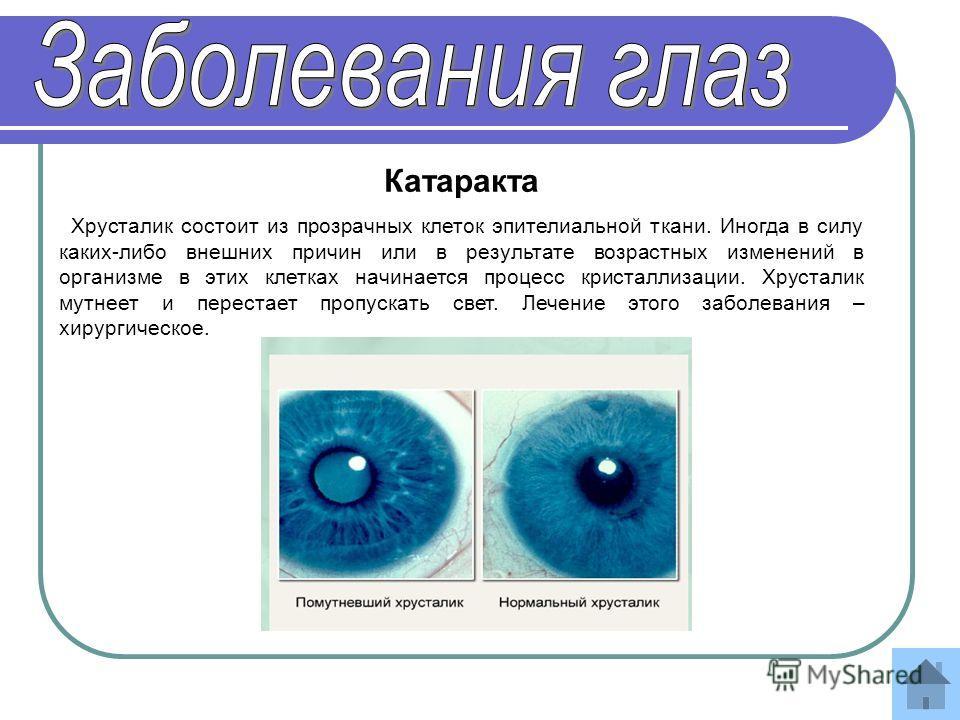 Ухудшает ли зрение ношение очков