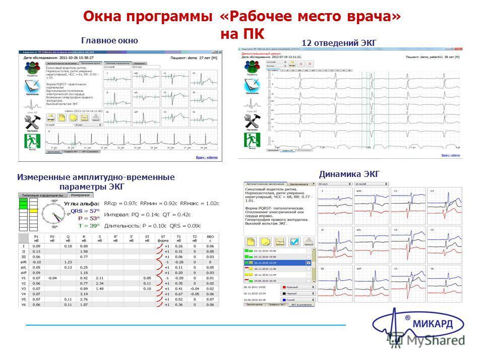 Окна программы «Рабочее место врача» на ПК Главное окно 12 отведений ЭКГ Измеренные амплитудно-временные параметры ЭКГ Динамика ЭКГ