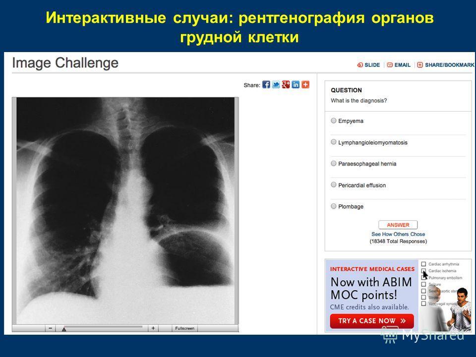 Интерактивные случаи: рентгенография органов грудной клетки