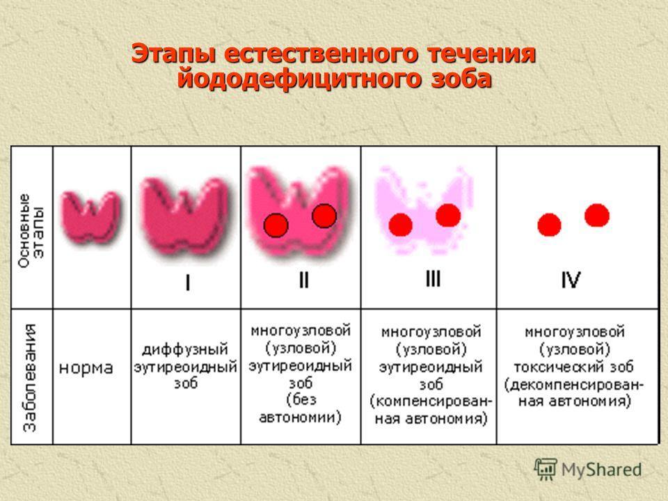 3. Нарушение функции репродуктивной системы: синдром гиперпролактинемического гипогонадизма (параллельно с дефицитом йода увеличивается продукция тиреолиберина и пролактина, что приводит к гипогонадизму); различные нарушения менструального цикла; имп