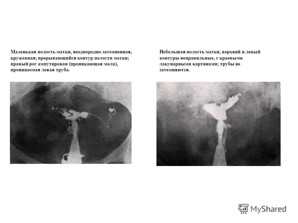 Маленькая полость матки, неоднородно затемненная, кружевная; прерывающийся контур полости матки; правый рог ампутирован (проникающая мола), проницаемая левая труба. Небольшая полость матки, верхний и левый контуры неправильные, с краевыми лакунарными