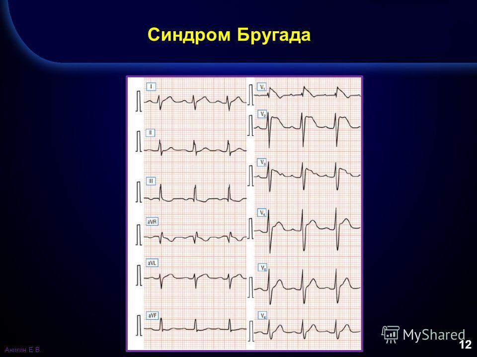 12 Синдром Бругада Аникин Е.В.
