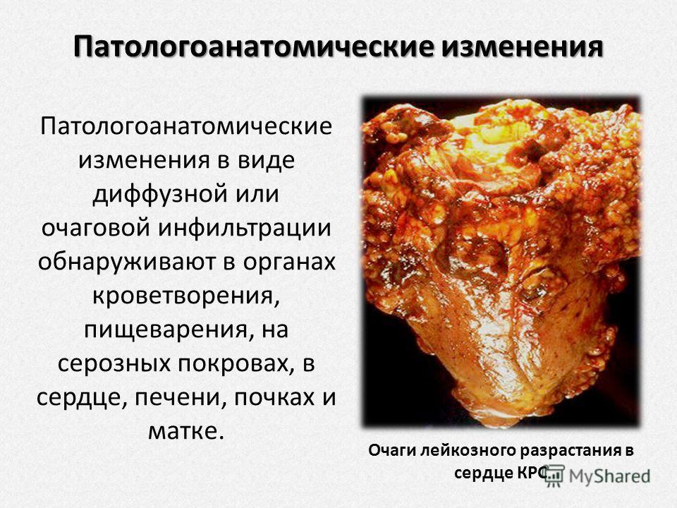 Презентация Лейкоз Крс