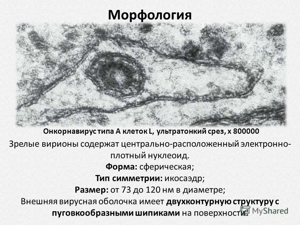 Онкорнавирус типа А клеток L, ультратонкий срез, х 800000 Морфология Зрелые вирионы содержат центрально-расположенный электронно- плотный нуклеоид. Форма: сферическая; Тип симметрии: икосаэдр; Размер: от 73 до 120 нм в диаметре; Внешняя вирусная обол
