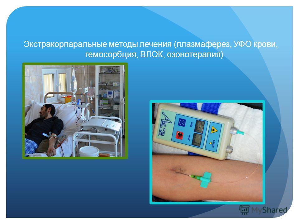 Экстракорпаральные методы лечения (плазмаферез, УФО крови, гемосорбция, ВЛОК, озонотерапия)
