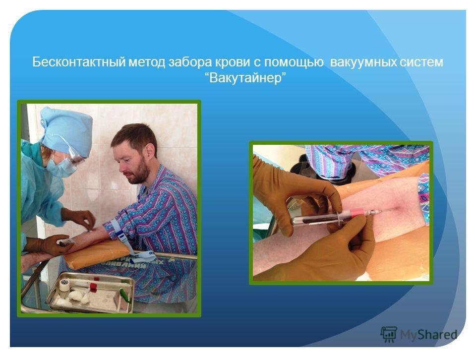 Бесконтактный метод забора крови с помощью вакуумных систем Вакутайнер