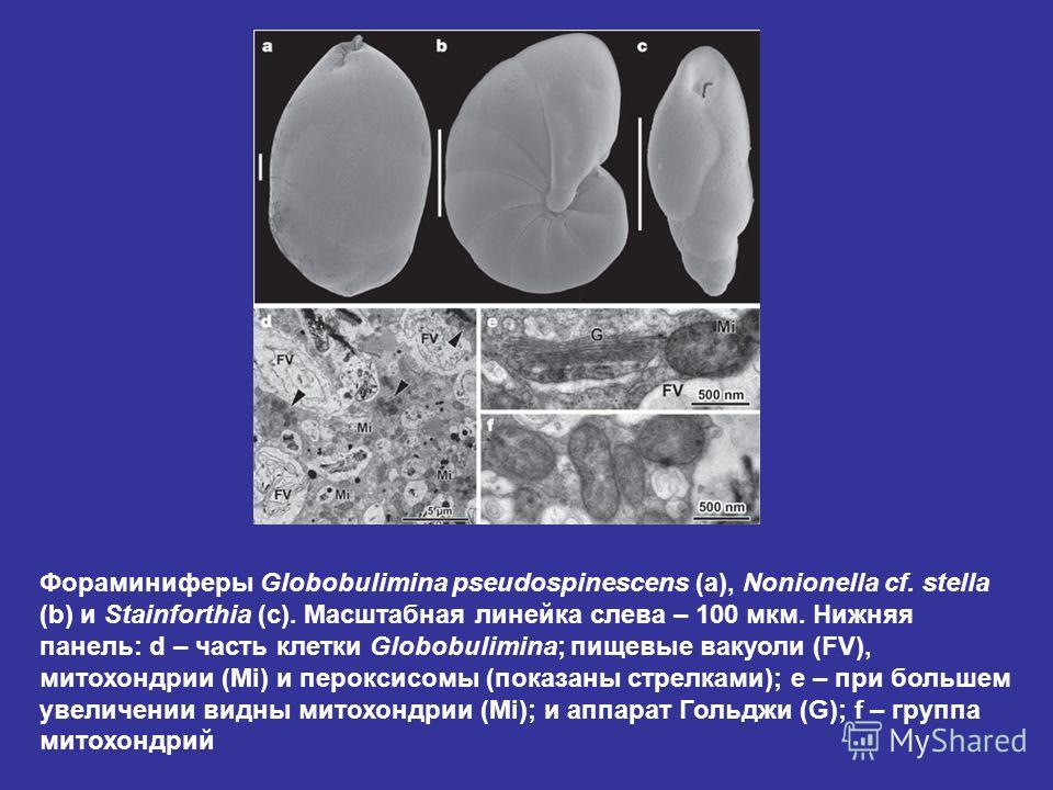 Фораминиферы Globobulimina pseudospinescens (a), Nonionella cf. stella (b) и Stainforthia (c). Масштабная линейка слева – 100 мкм. Нижняя панель: d – часть клетки Globobulimina; пищевые вакуоли (FV), митохондрии (Mi) и пероксисомы (показаны стрелками