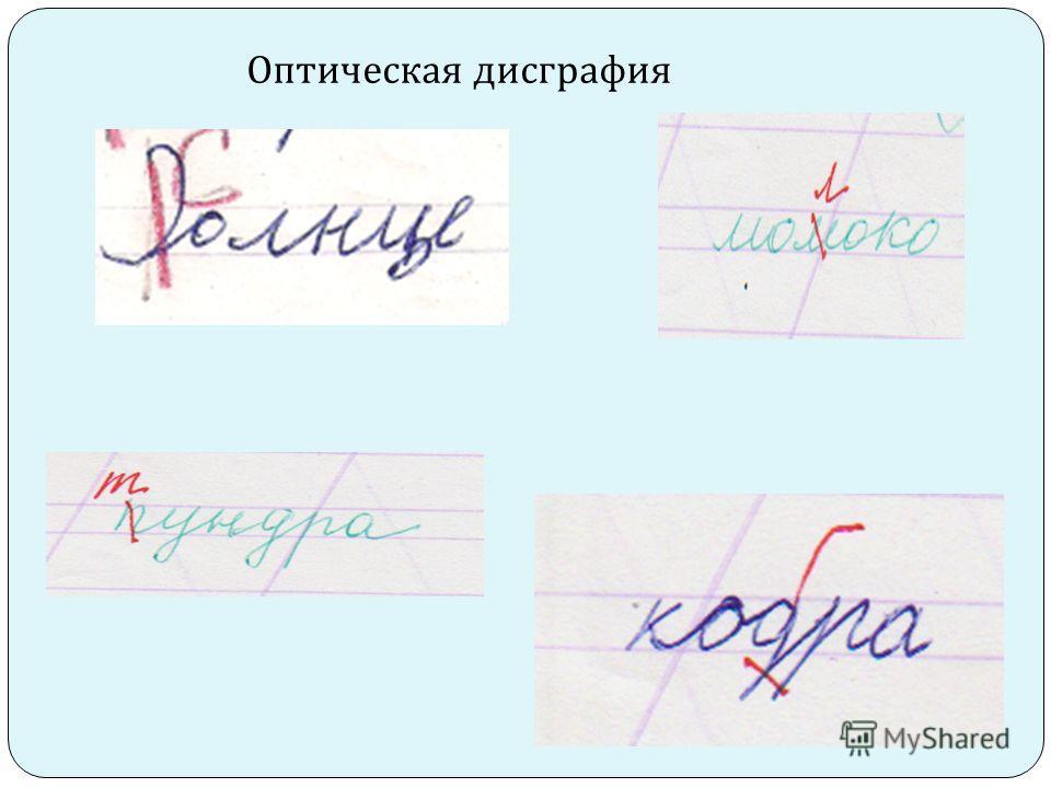 Оптическая дисграфия