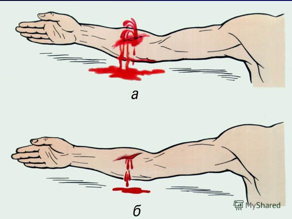 КРОВОТЕЧЕНИЯ Артериальные Артериальные 1. Алая кровь, бьет пульсирующим фонтаном. 2. Самостоятельно не останавливаются. 3. Прекращаются при наложении жгута выше места кровотечения Венозные Венозные 1. Кровь темная, непрерывное кровотечение. 2. Самост
