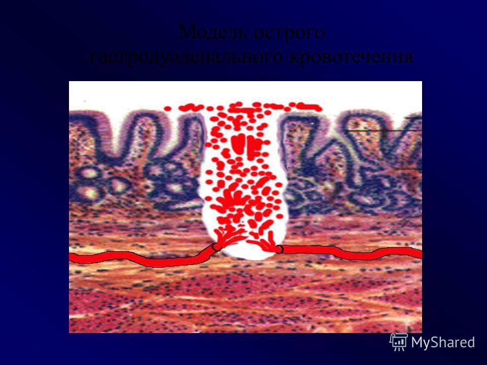КЛАССИФИКАЦИЯ КРОВОТЕЧЕНИЙ Наружное - кровь выделяется во внешнюю среду.Наружное - кровь выделяется во внешнюю среду. Внутреннее - кровь изливается в ткани, замкнутую полость тела или в просвет полого органа.Внутреннее - кровь изливается в ткани, зам