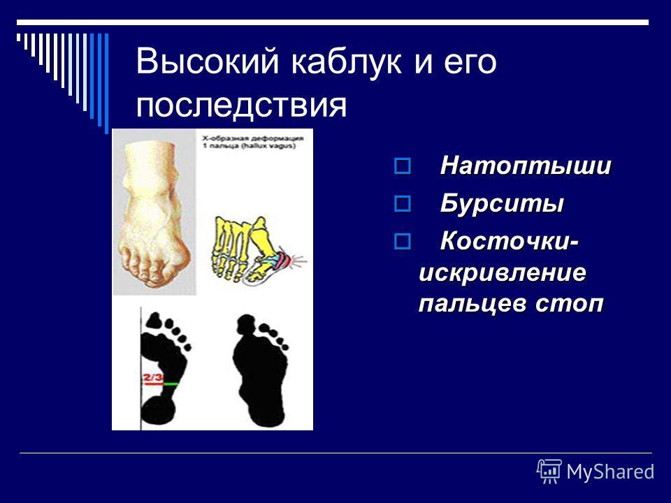 Высокий каблук и его последствия Н Натоптыши Б Бурситы К Косточки- искривление пальцев стоп