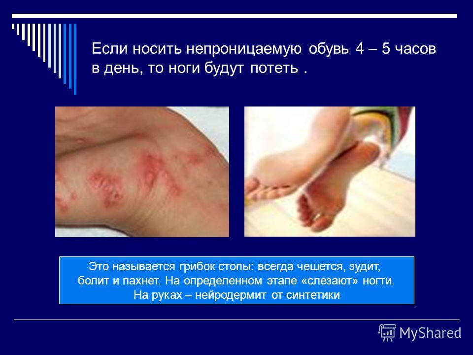 Если носить непроницаемую обувь 4 – 5 часов в день, то ноги будут потеть. Это называется грибок стопы: всегда чешется, зудит, болит и пахнет. На определенном этапе «слезают» ногти. На руках – нейродермит от синтетики