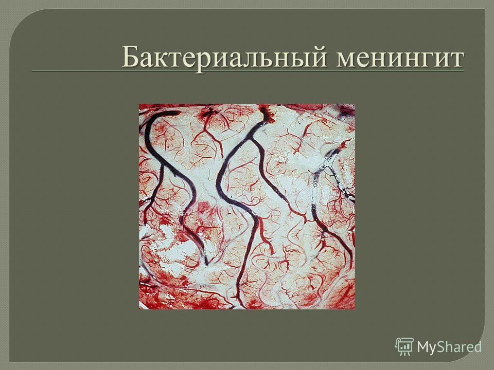 Бактериальный менингит