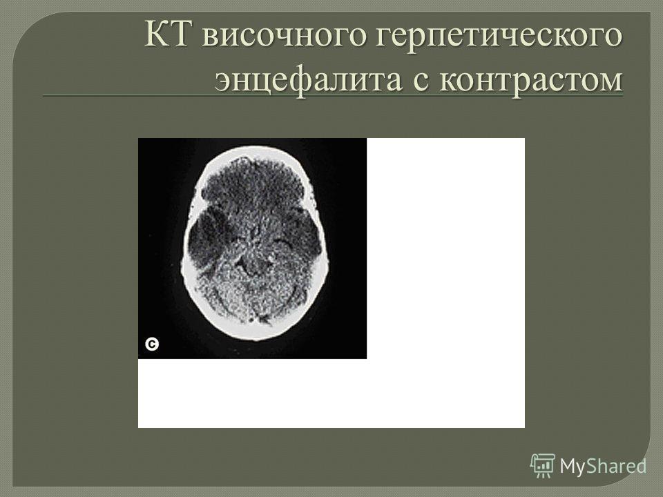 КТ височного герпетического энцефалита с контрастом