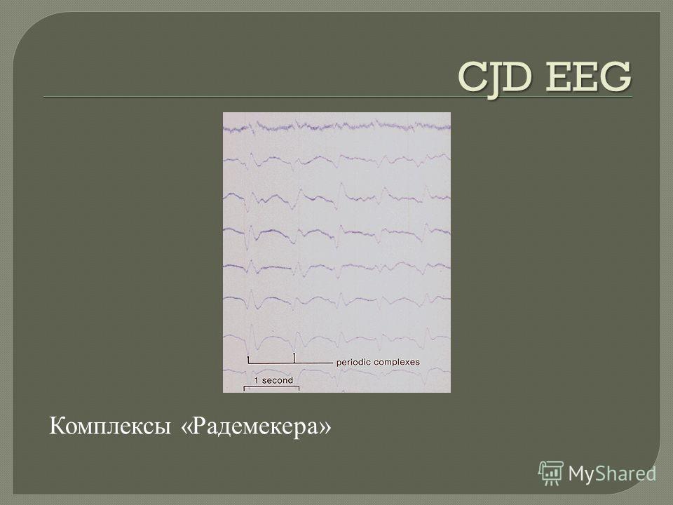 CJD EEG Комплексы « Радемекера »