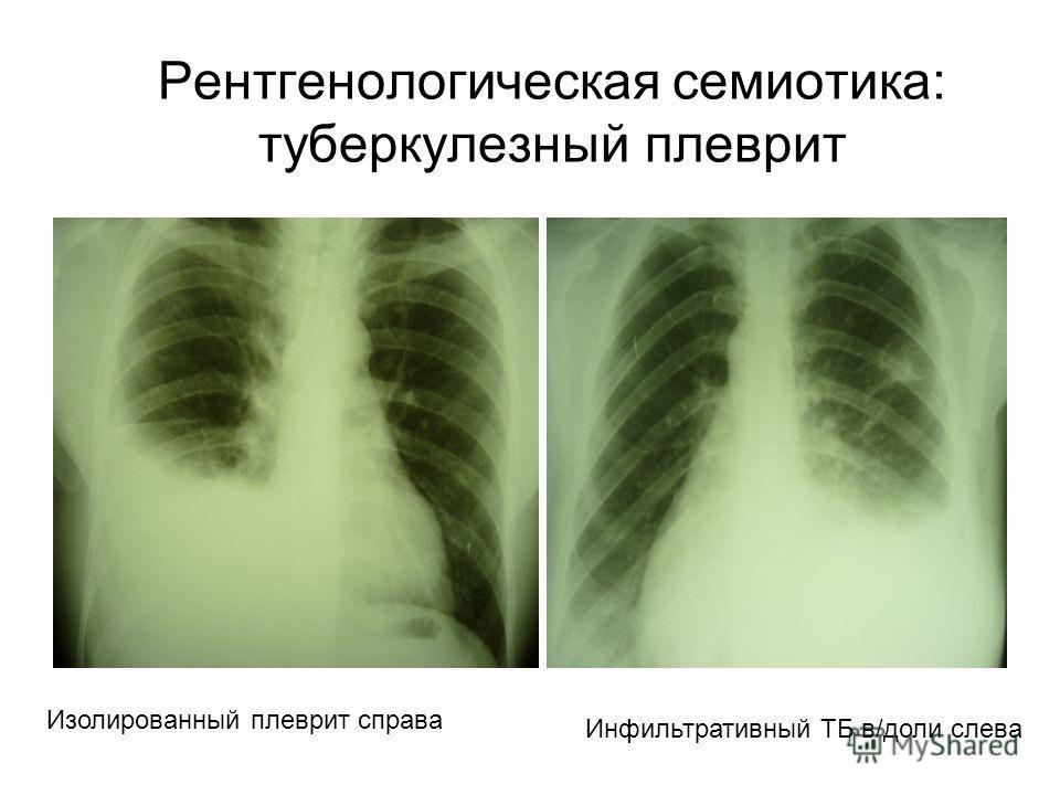 Рентгенологическая семиотика: туберкулезный плеврит Изолированный плеврит справа Инфильтративный ТБ в/доли слева