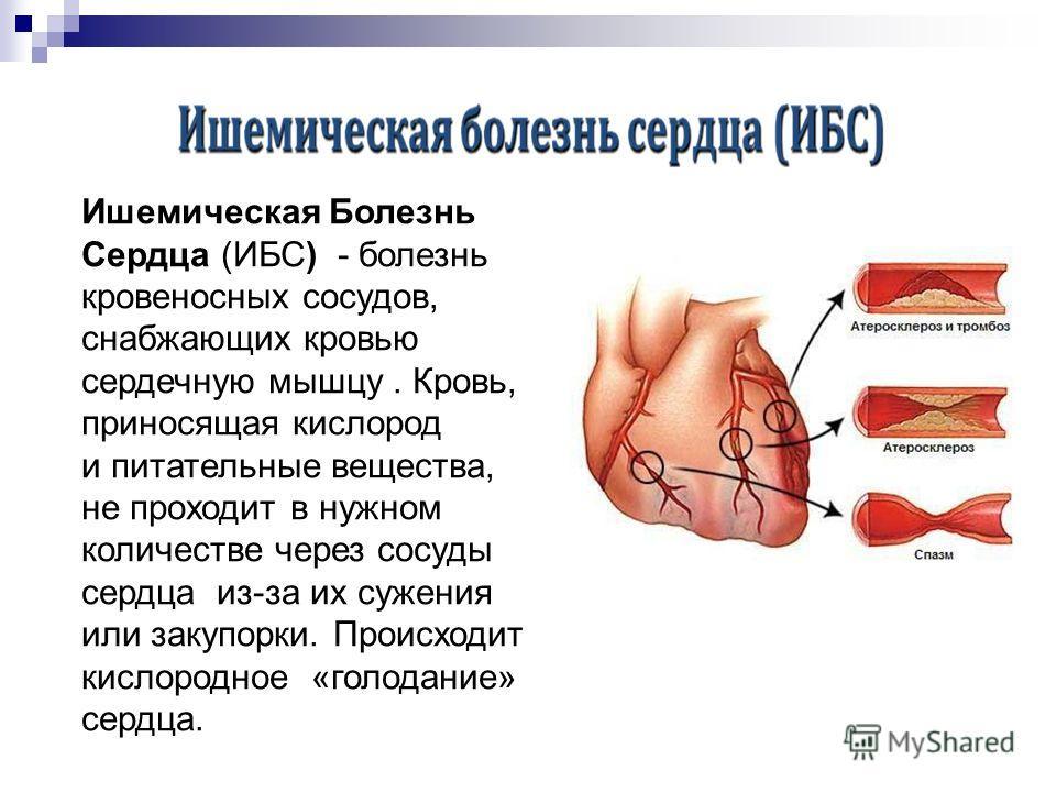 Ишемическая Болезнь Сердца (ИБС) - болезнь кровеносных сосудов, снабжающих кровью сердечную мышцу. Кровь, приносящая кислород и питательные вещества, не проходит в нужном количестве через сосуды сердца из-за их сужения или закупорки. Происходит кисло