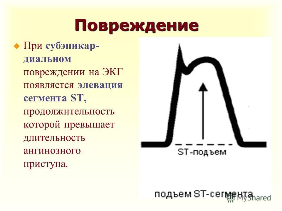 Повреждение u При субэпикар- диальном повреждении на ЭКГ появляется элевация сегмента ST, продолжительность которой превышает длительность ангинозного приступа.