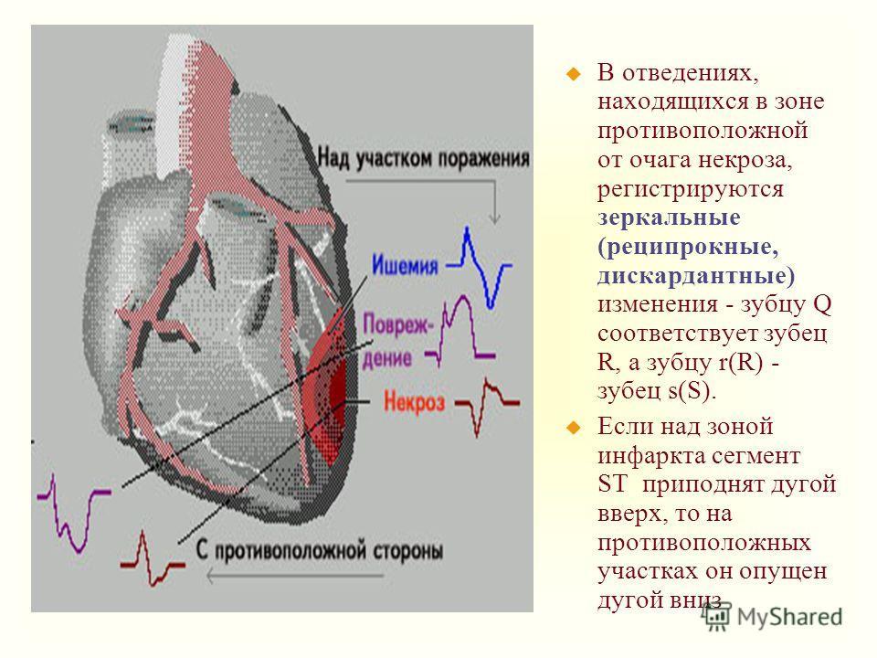 u В отведениях, находящихся в зоне противоположной от очага некроза, регистрируются зеркальные (реципрокные, дискардантные) изменения - зубцу Q соответствует зубец R, а зубцу r(R) - зубец s(S). u Если над зоной инфаркта сегмент ST приподнят дугой вве