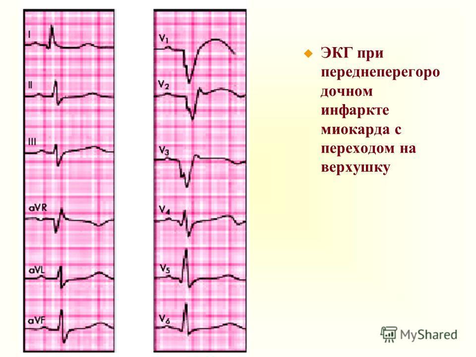 u ЭКГ при переднеперегоро дочном инфаркте миокарда с переходом на верхушку