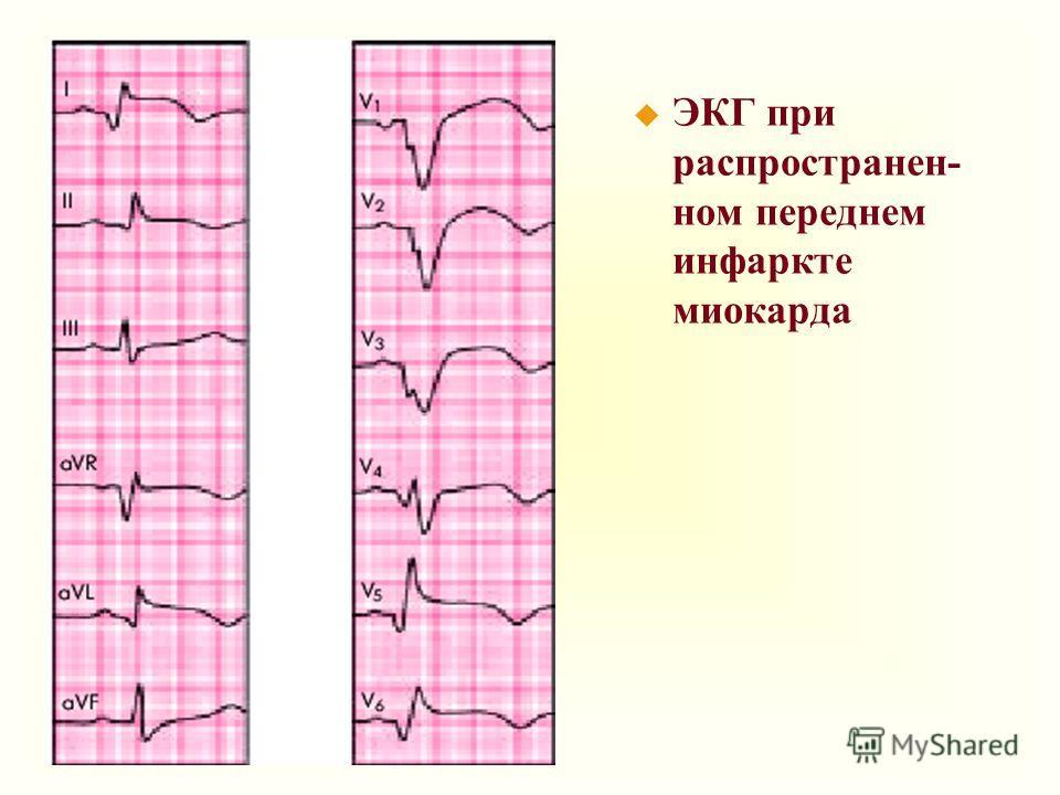u ЭКГ при распространен- ном переднем инфаркте миокарда