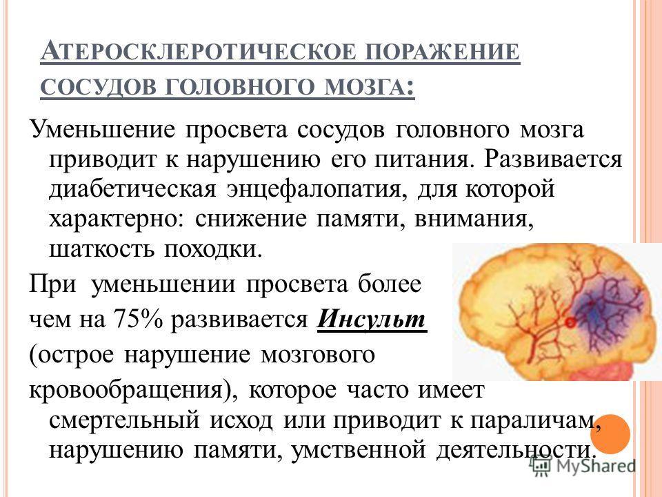 А ТЕРОСКЛЕРОТИЧЕСКОЕ ПОРАЖЕНИЕ СОСУДОВ ГОЛОВНОГО МОЗГА : Уменьшение просвета сосудов головного мозга приводит к нарушению его питания. Развивается диабетическая энцефалопатия, для которой характерно: снижение памяти, внимания, шаткость походки. При у