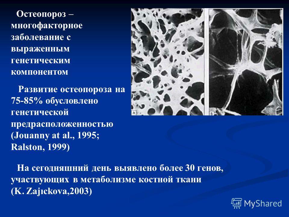 Остеопороз – многофакторное заболевание с выраженным генетическим компонентом Развитие остеопороза на 75-85% обусловлено генетической предрасположенностью (Jouanny at al., 1995; Ralston, 1999) На сегодняшний день выявлено более 30 генов, участвующих