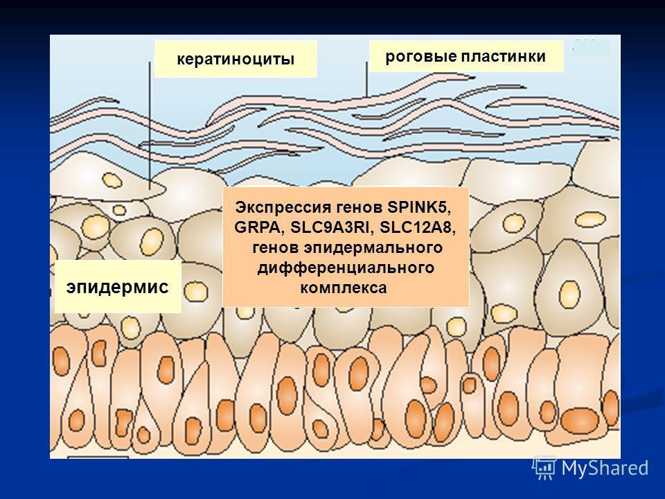 Экспрессия генов SPINK5, GRPA, SLC9A3RI, SLC12A8, генов эпидермального дифференциального комплекса эпидермис кератиноциты роговые пластинки