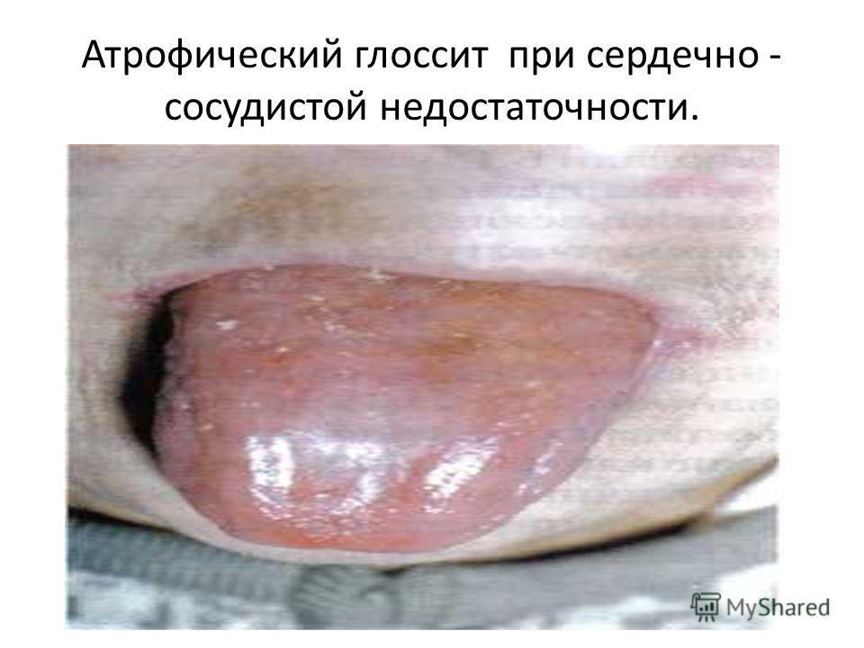 Атрофический глоссит при сердечно - сосудистой недостаточности.