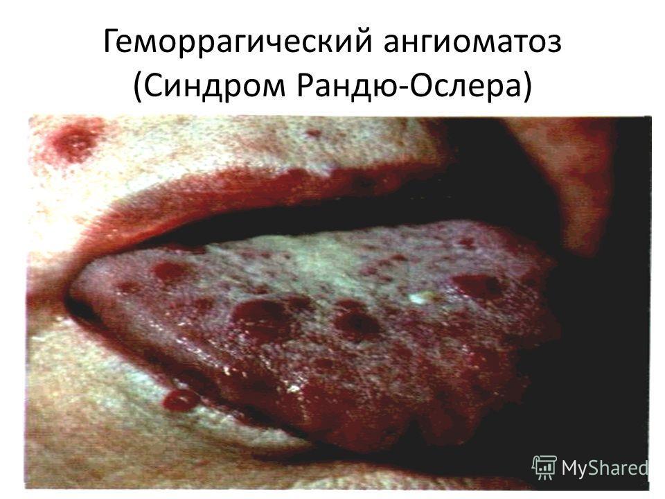 Геморрагический ангиоматоз (Синдром Рандю-Ослера)