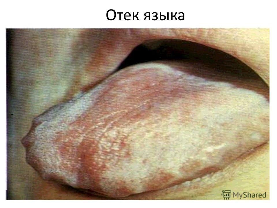 Отек языка