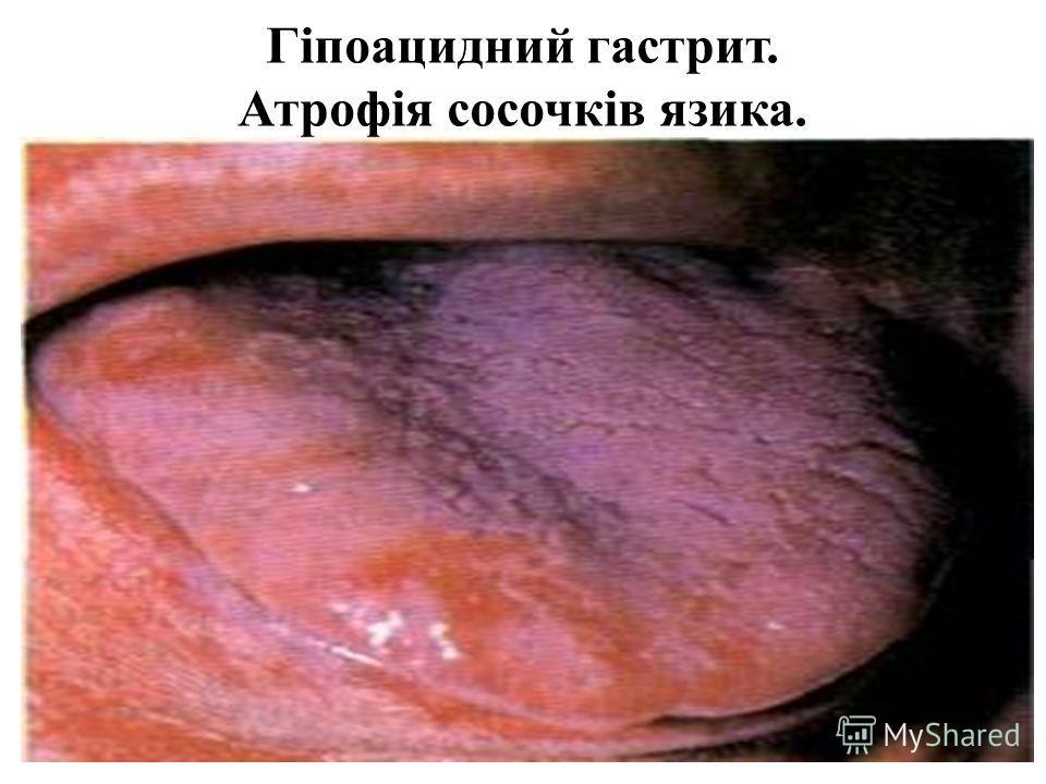 Гіпоацидний гастрит. Атрофія сосочків язика.