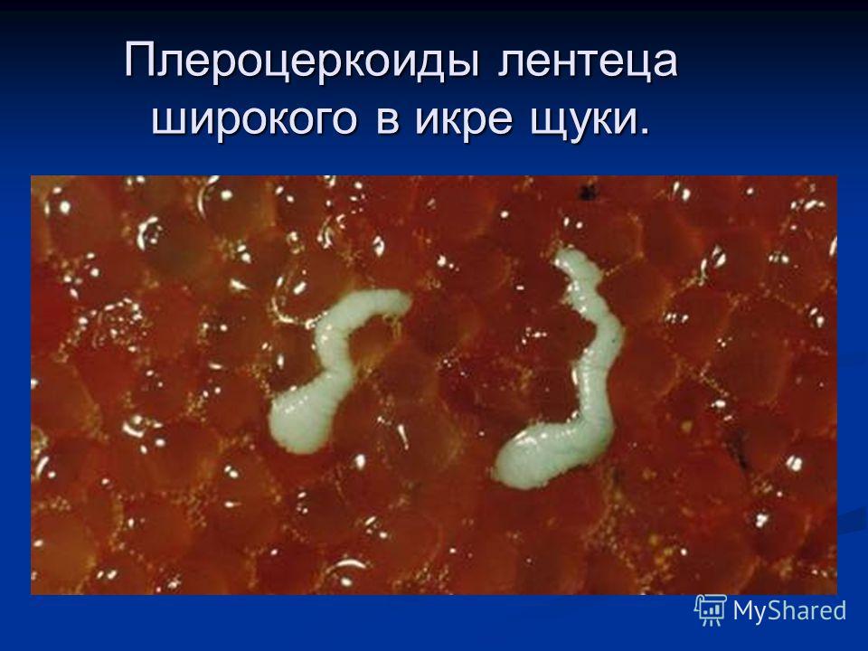 Плероцеркоиды лентеца широкого в икре щуки.