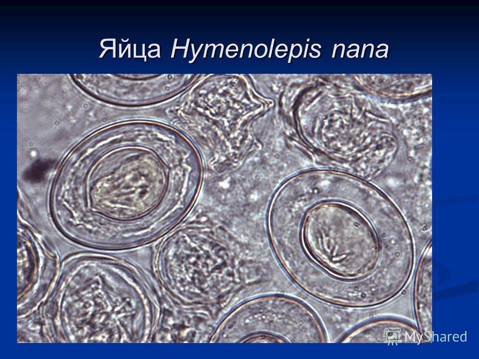 Яйца Hymenolepis nana