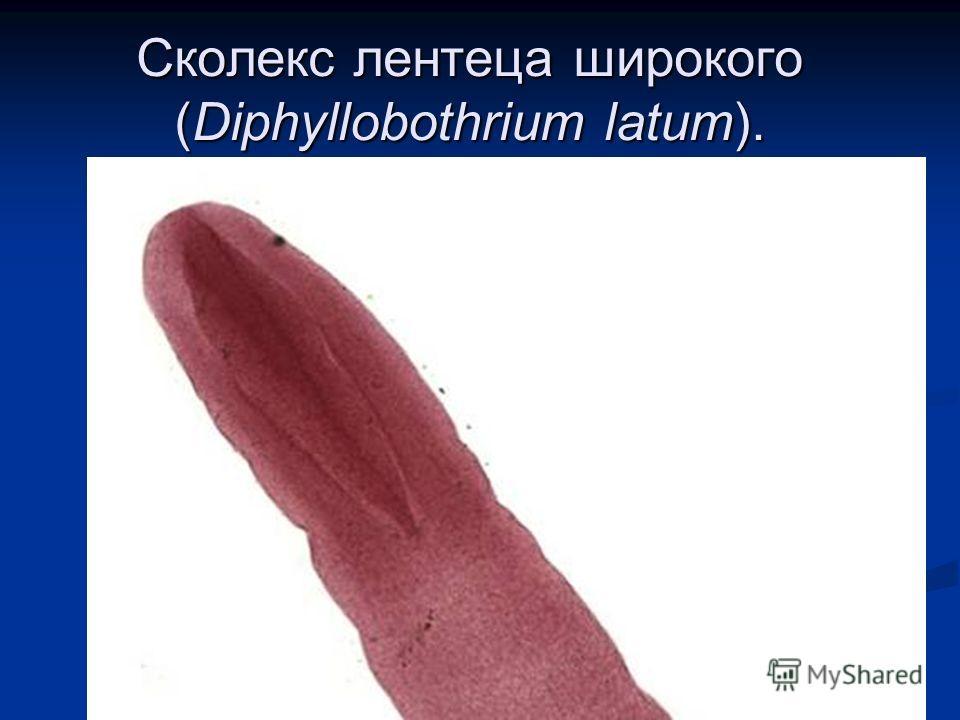 Сколекс лентеца широкого (Diphyllobothrium latum).