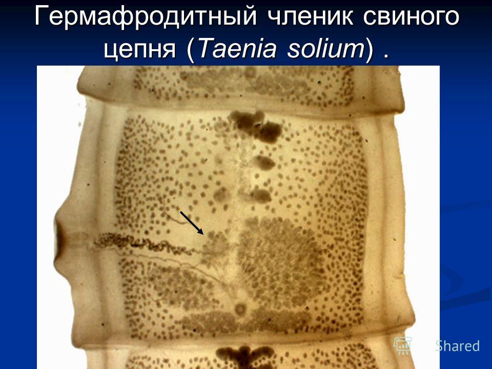 Гермафродитный членик свиного цепня (Taenia solium).