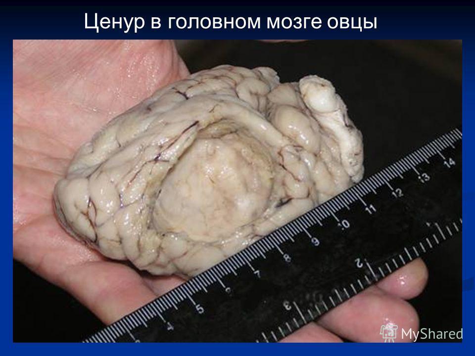 Ценур в головном мозге овцы