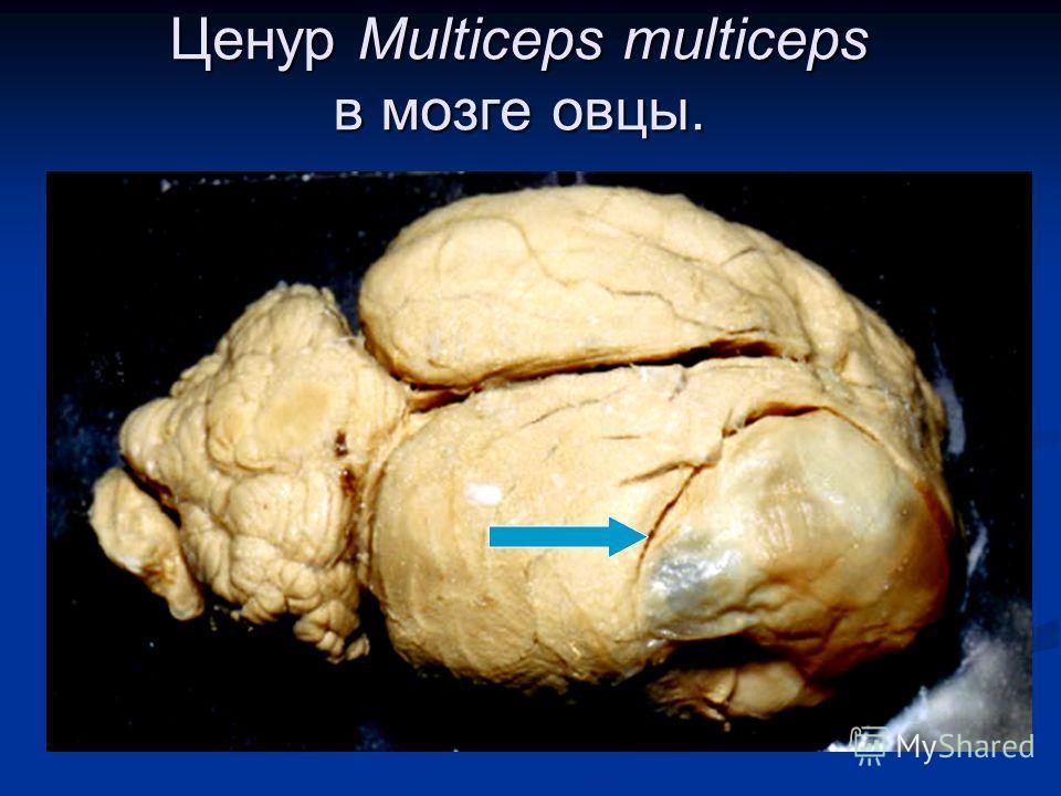 Ценур Multiceps multiceps в мозге овцы.